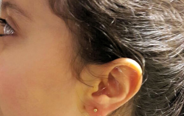 Ear Piercing – Kids Piercing